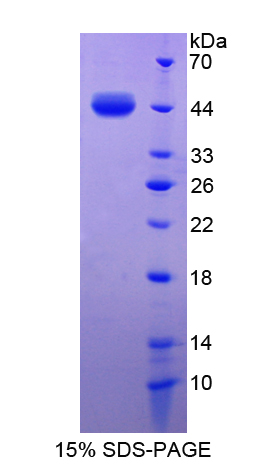 S100A7 / Psoriasin Protein - Recombinant  S100 Calcium Binding Protein A7 By SDS-PAGE