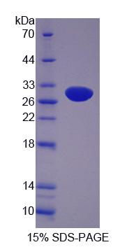 SUOX / Sulfite Oxidase Protein - Recombinant Sulfite Oxidase By SDS-PAGE