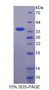 TFF3 / Trefoil Factor 3 Protein - Recombinant  Trefoil Factor 3, Intestinal By SDS-PAGE