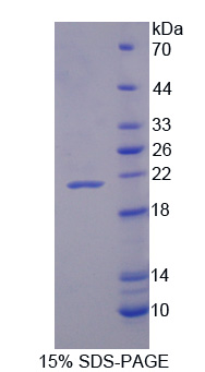 VIP Protein - Recombinant Vasoactive Intestinal Peptide By SDS-PAGE