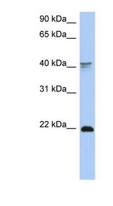 DLX4 antibody Western blot of COLO205 cell lysate. This image was taken for the unconjugated form of this product. Other forms have not been tested.