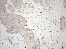 BP1 / DLX4 Antibody - Immunohistochemical staining of paraffin-embedded Adenocarcinoma of Human endometrium tissue using anti-DLX4 mouse monoclonal antibody. (Heat-induced epitope retrieval by 1mM EDTA in 10mM Tris buffer. (pH8.5) at 120°C for 3 min. (1:150)