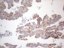 BP1 / DLX4 Antibody - Immunohistochemical staining of paraffin-embedded Adenocarcinoma of Human ovary tissue using anti-DLX4 mouse monoclonal antibody. (Heat-induced epitope retrieval by 1mM EDTA in 10mM Tris buffer. (pH8.5) at 120°C for 3 min. (1:150)