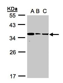 Sample (30 ug whole cell lysate). A:293T, B: A431, C: H1299. 12% SDS PAGE. BPGM antibody diluted at 1:1000