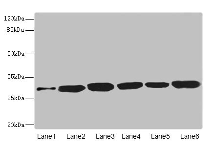 Western blot All Lanes: BPGM antibody at 5.94ug/ml Lane 1: Human peripheral blood mononuclear cells Lane 2: Mouse liver tissue Lane 3: Human placenta tissue Lane 4: Hela whole cell lysate Lane 5: 293T whole cell lysate Lane 6: A549 whole cell lysate Goat polyclonal to Rabbit IgG at 1/10000 dilution Predicted band size: 30 kDa Observed band size: 30 kDa