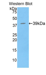 Western blot of recombinant BPI.  This image was taken for the unconjugated form of this product. Other forms have not been tested.