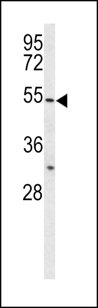 Western blot of BPI Antibody in HL-60 cell line lysates (35 ug/lane). BPI (arrow) was detected using the purified antibody.