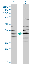 Western blot of BPNT1 expression in transfected 293T cell line by BPNT1 monoclonal antibody (M01), clone 2E1.
