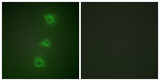 Immunofluorescence analysis of HUVEC cells, using B-RAF Antibody. The picture on the right is blocked with the synthesized peptide.