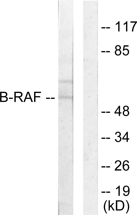 Western blot analysis of lysates from HeLa cells, using B-RAF Antibody. The lane on the right is blocked with the synthesized peptide.