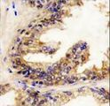Formalin-fixed and paraffin-embedded human prostate carcinoma reacted with BRAF Antibody , which was peroxidase-conjugated to the secondary antibody, followed by DAB staining. This data demonstrates the use of this antibody for immunohistochemistry; clinical relevance has not been evaluated.