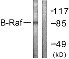 Western blot analysis of lysates from K562 cells, using B-RAF Antibody. The lane on the right is blocked with the synthesized peptide.
