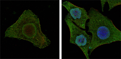Confocal immunofluorescence of MCF-7 (left) and HepG2 (right) cells using BRAF mouse monoclonal antibody (green). Red: Actin filaments have been labeled with DY-554 phalloidin. Blue: DRAQ5 fluorescent DNA dye