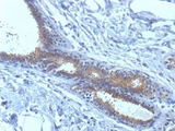 IHC testing of FFPE human breast carcinoma tissue with BRCA1 antibody (clone BRCA1/1398). HIER: boil tissue sections in 10mM citrate buffer, pH 6.0, for 10-20 min.