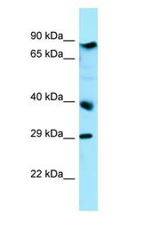BRAT1 / BAAT1 Antibody - BRAT1 / BAAT1 antibody Western Blot of HepG2.  This image was taken for the unconjugated form of this product. Other forms have not been tested.