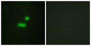 Immunofluorescence analysis of MCF7 cells, using TF3B Antibody. The picture on the right is blocked with the synthesized peptide.