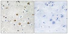 BRF1 Antibody - Immunohistochemistry analysis of paraffin-embedded human brain tissue, using TF3B Antibody. The picture on the right is blocked with the synthesized peptide.