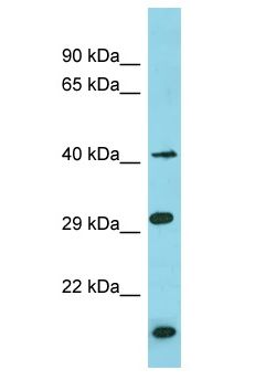 BRICD5 Antibody - BRICD5 antibody Western Blot of THP-1. Antibody dilution: 1 ug/ml.  This image was taken for the unconjugated form of this product. Other forms have not been tested.