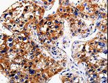 Immunohistochemistry of paraffin-embedded Human liver cancer using BIRC6 Polyclonal Antibody at dilution of 1:50.