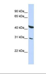 BRUNOL6 / CELF6 Antibody - HepG2 cell lysate. Antibody concentration: 1.0 ug/ml. Gel concentration: 12%.  This image was taken for the unconjugated form of this product. Other forms have not been tested.