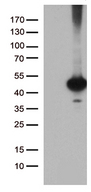 BRUNOL6 / CELF6 Antibody - HEK293T cells were transfected with the pCMV6-ENTRY control. (Left lane) or pCMV6-ENTRY CELF6. (Right lane) cDNA for 48 hrs and lysed. Equivalent amounts of cell lysates. (5 ug per lane) were separated by SDS-PAGE and immunoblotted with anti-CELF6. (1:2000)
