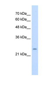 BRX / CHIC1 Antibody - CHIC1 / BRX antibody ARP44893_T100-NP_001034929-CHIC1(cysteine-rich hydrophobic domain 1) Antibody Western blot of Jurkat lysate.  This image was taken for the unconjugated form of this product. Other forms have not been tested.