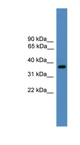 BSND antibody LS-C116885 Western blot of Fetal Heart lysate.  This image was taken for the unconjugated form of this product. Other forms have not been tested.