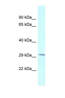 BSPRY antibody LS-C145788 Western blot of Fetal Heart lysate. Antibody concentration 1 ug/ml.  This image was taken for the unconjugated form of this product. Other forms have not been tested.