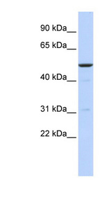 BTBD3 antibody Western blot of MCF7 cell lysate. This image was taken for the unconjugated form of this product. Other forms have not been tested.