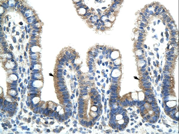 BTBD6 antibody LS-C30978 was used in IHC to stain formalin-fixed, paraffin-embedded human intestine.  This image was taken for the unconjugated form of this product. Other forms have not been tested.