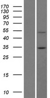BTBD7 Protein - Western validation with an anti-DDK antibody * L: Control HEK293 lysate R: Over-expression lysate