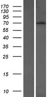 BTBD9 Protein - Western validation with an anti-DDK antibody * L: Control HEK293 lysate R: Over-expression lysate