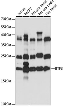 BTF3 Antibody - Western blot analysis of extracts of various cell lines, using BTF3 antibody at 1:1000 dilution. The secondary antibody used was an HRP Goat Anti-Rabbit IgG (H+L) at 1:10000 dilution. Lysates were loaded 25ug per lane and 3% nonfat dry milk in TBST was used for blocking. An ECL Kit was used for detection and the exposure time was 10S.