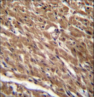 BTG3 Antibody - BTG3 Antibody immunohistochemistry of formalin-fixed and paraffin-embedded human heart tissue followed by peroxidase-conjugated secondary antibody and DAB staining.