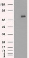 HEK293T cells were transfected with the pCMV6-ENTRY control (Left lane) or pCMV6-ENTRY BTK (Right lane) cDNA for 48 hrs and lysed. Equivalent amounts of cell lysates (5 ug per lane) were separated by SDS-PAGE and immunoblotted with anti-BTK.