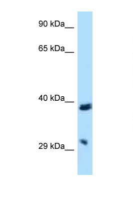 BTLA / CD272 antibody LS-C145359 Western blot of HepG2 Cell lysate. Antibody concentration 1 ug/ml.  This image was taken for the unconjugated form of this product. Other forms have not been tested.