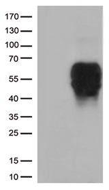 BTLA / CD272 Antibody - HEK293T cells were transfected with the pCMV6-ENTRY control. (Left lane) or pCMV6-ENTRY BTLA. (Right lane) cDNA for 48 hrs and lysed