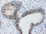 BUB3 antibody. IHC(P): Human Breast Cancer Tissue.