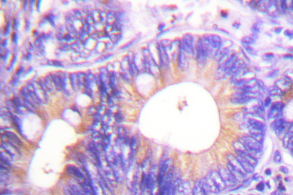 IHC of CBL (S668) pAb in paraffin-embedded human colon carcinoma tissue.