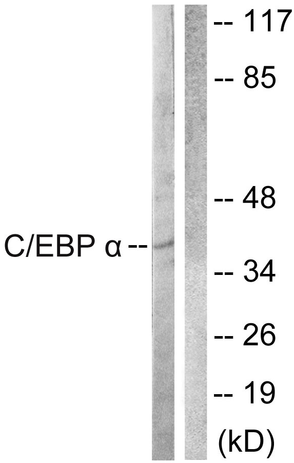 Western blot analysis of lysates from COS7 cells, treated with EGF 200ng/ml 30', using C/EBP-alpha Antibody. The lane on the right is blocked with the synthesized peptide.