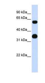 CEBPA / CEBP Alpha antibody LS-B4685 Western blot of 721_B cell lysate.  This image was taken for the unconjugated form of this product. Other forms have not been tested.