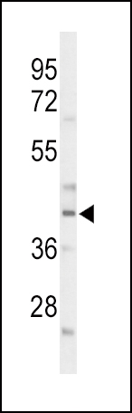 Western blot of CEBPA Antibody in mouse liver tissue lysates (35 ug/lane). CEBPA (arrow) was detected using the purified antibody.