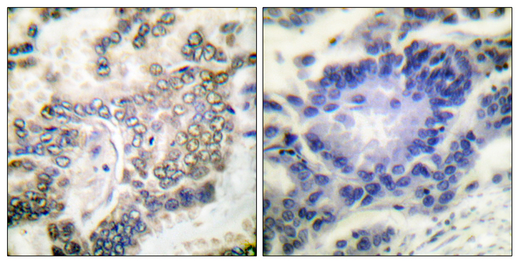 Immunohistochemistry analysis of paraffin-embedded human lung carcinoma tissue, using C/EBP-alpha Antibody. The picture on the right is blocked with the synthesized peptide.