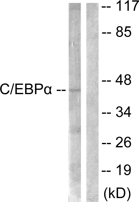 Western blot analysis of lysates from 293 cells, treated with Insulin 0.01U/ml 15', using C/EBP-alpha Antibody. The lane on the right is blocked with the synthesized peptide.