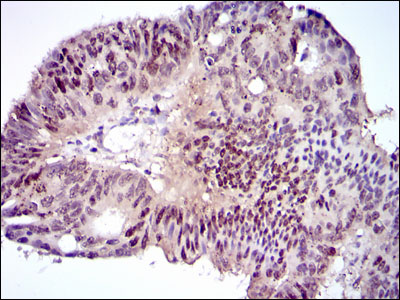 IHC of paraffin-embedded rectum tissues using CEBPA mouse monoclonal antibody with DAB staining.