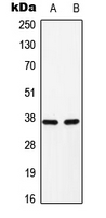 Western blot analysis of C/EBP alpha (pS193) expression in H9C2 (A); Raw264.7 (B) whole cell lysates.