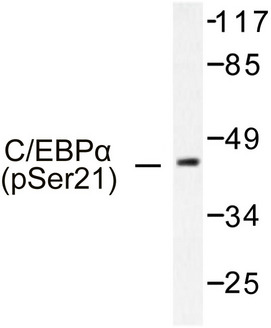Western blot of p-C/EBP alpha (S21) pAb in extracts from HepG2 cells treated with EGF.