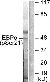 Western blot of extracts from HepG2 cells treated with EGF (200ng/ml, 5mins), using C/EBP- alpha (phospho-Ser21) antibody.