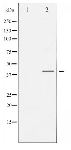 Western blot of C/EBP- alpha phosphorylation expression in EGF treated HepG2 whole cell lysates,The lane on the left is treated with the antigen-specific peptide.