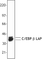 C/EBP Beta / CEBPB Antibody - Nuclear extracts from P388D1 (IL-1) were resolved by electrophoresis, transferred to nitrocellulose and probed with anti-C/EBP beta (clone A16). Proteins were visualized using a goat anti-mouse secondary antibody conjugated to HRP and a chemiluminescence system.